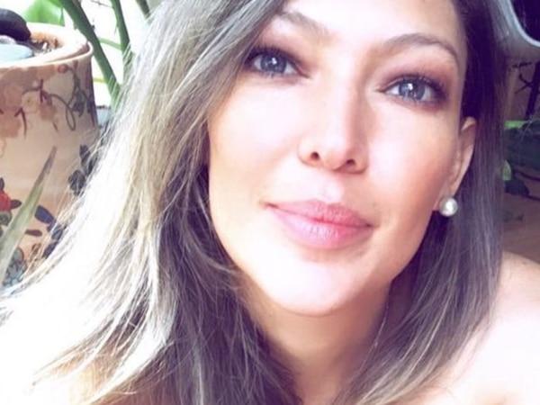 ¡Sin filtros! Natalia Durán mostró la cicatriz que tiene en su cuello